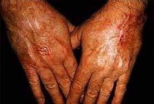 kanker-kulit